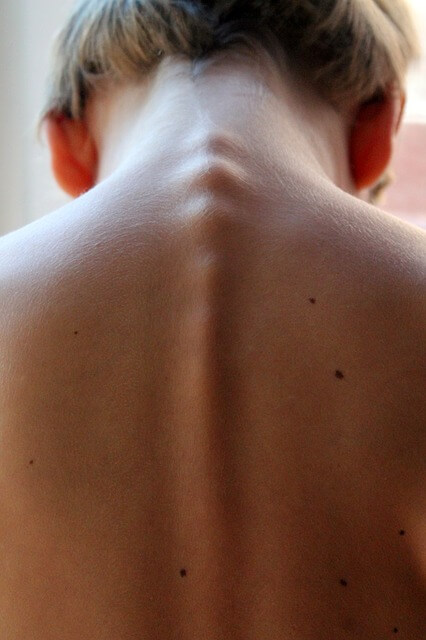 Réflexologie Dorsale et Vertébrale - Dos